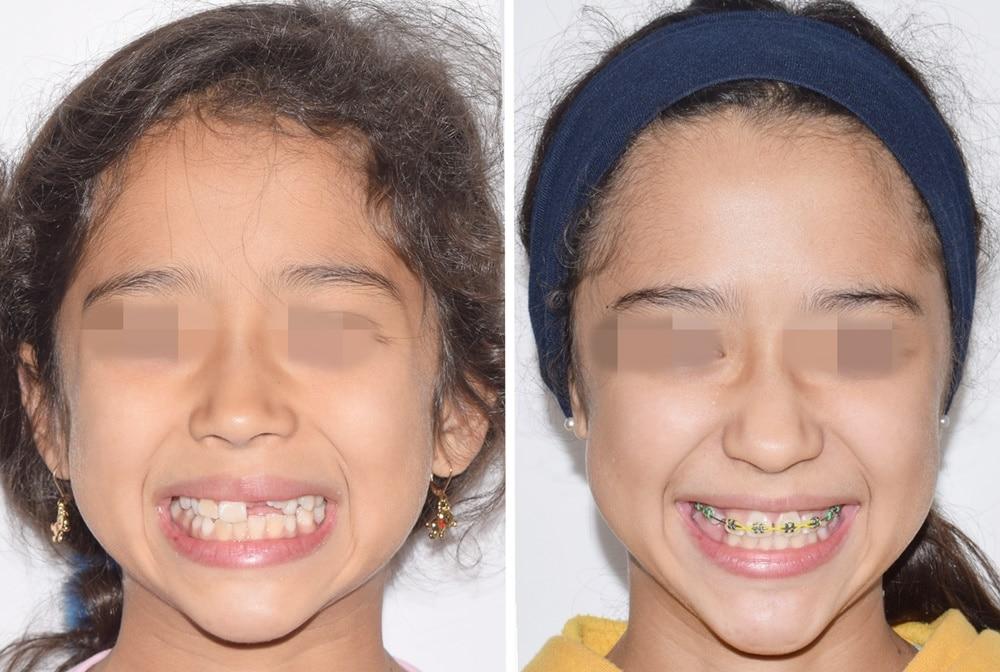 ortodoncia infantil Perú
