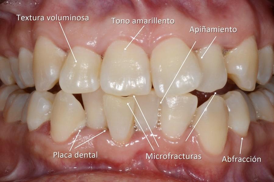 problemas de la estética dental