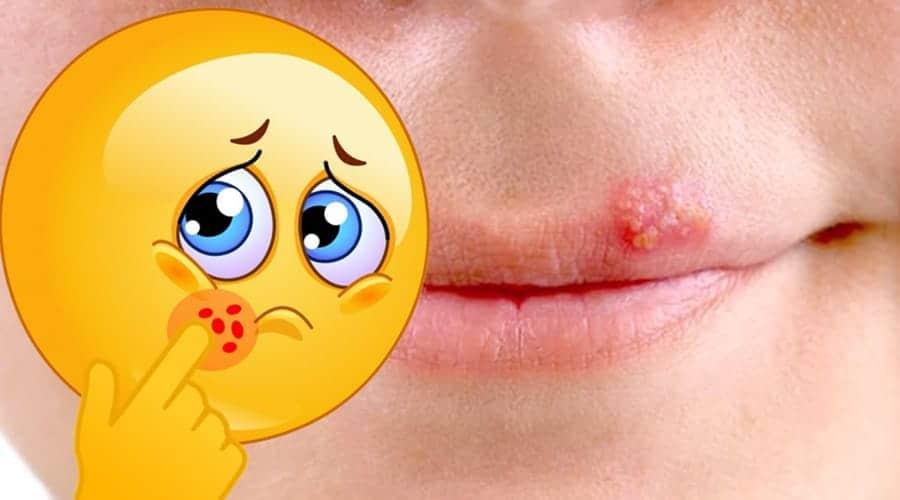 herpes labial y tratamiento actual