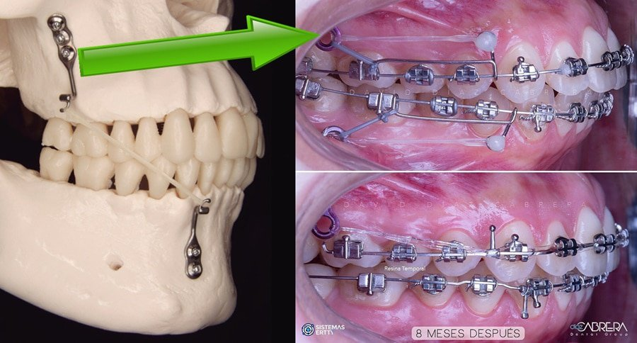 ortodoncia sin extracciones con miniplacas