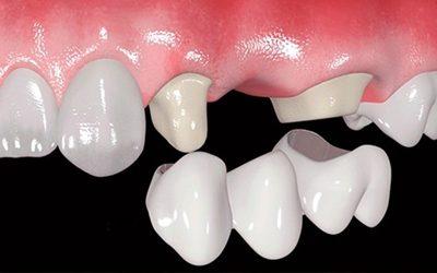 Tratamiento con Prótesis dentales