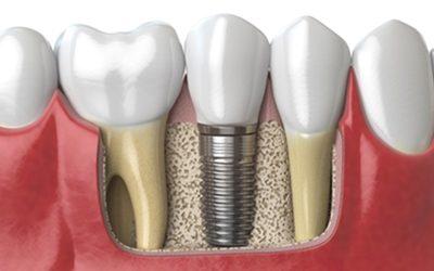 Recupere sus dientes perdidos con los implantes dentales
